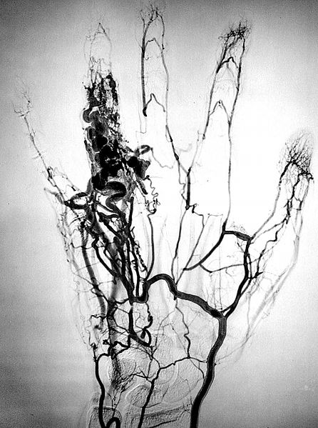 Angiogramm veresoonte patoloogilisest moodustisest sõrmes (© Michel Royon / Wikimedia Commons)