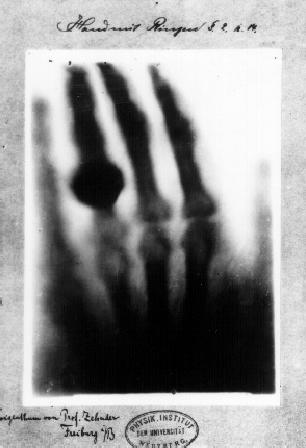"""Wilhelm Röntgeni poolt tehtud esimene """"meditsiiniline"""" röntgenülesvõte tema abikaasa käest, 22. Detsember 1895 (Wikipedia)"""