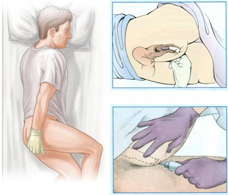 Pilt: Ravimi pärasoolde manustamine