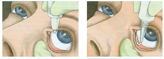 Ravimi silma manustamine