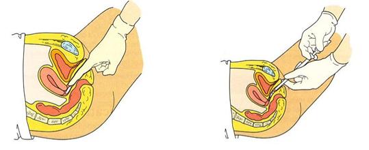 Pilt: Ravimi vaginaalne manustamine