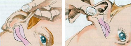 Ravimi kõrva manustamine